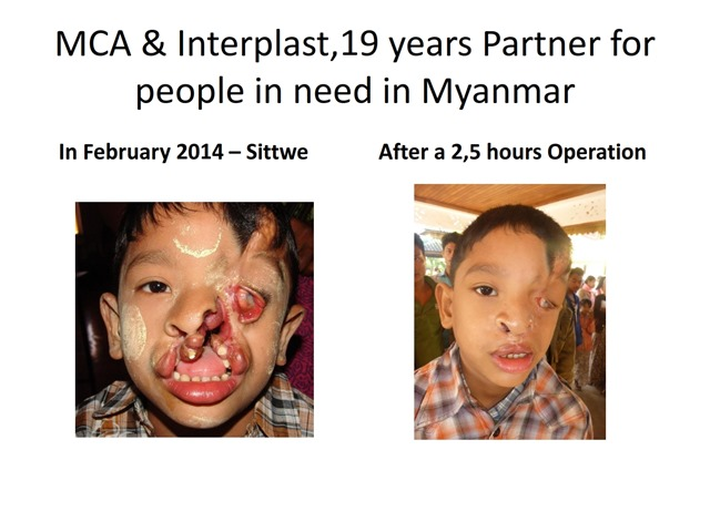 2 WACS Asia Myanmar Chefs 2014-2015 Report- Oliver 22.8.2015  - Copy_019